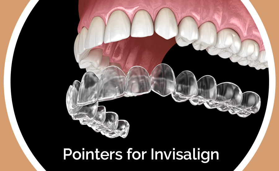 Pointers-for-Invisalign